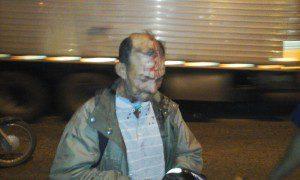 Motociclista sofreu escoriações