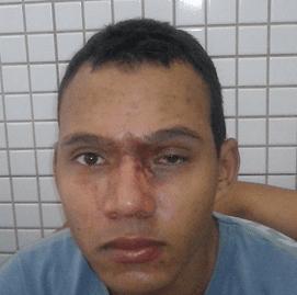 Carlos foi atingido nos olhos pelo pai