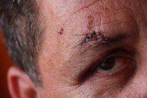 Marcas da agressão ficaram no rosto do comerciante