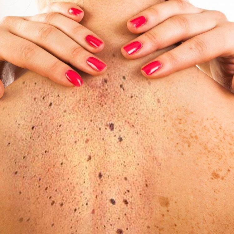 Resultado de imagem para Câncer de pele